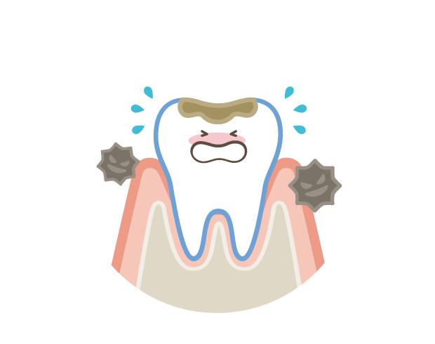 歯周病や初期の虫歯は痛みなく進行してしまうため